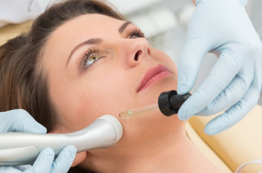 Top 5 Benefits of Microdermabrasion